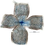 Wie ein Spinnennetz ziehen sich Melanopsin-produzierende Ganglienzellen über die Netzhaut.